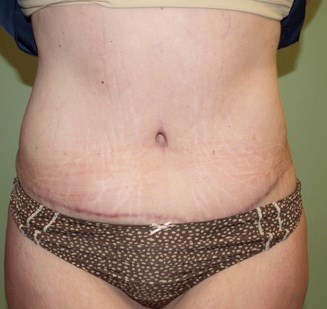 Slimmer Tummy After