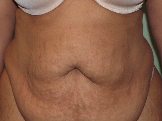 40 y.o. Seeking Sleek Abdomen Before