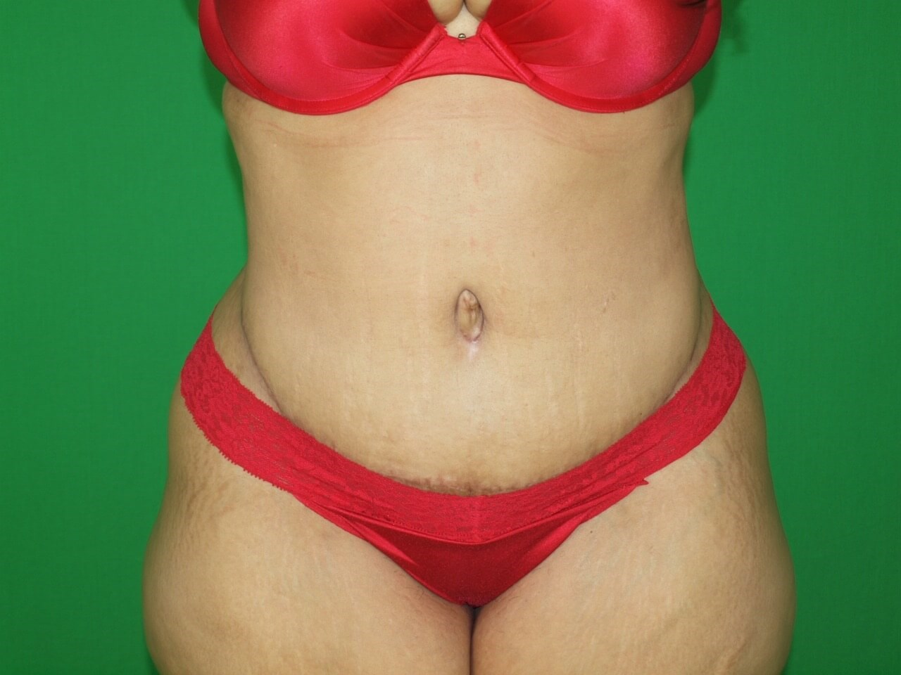 40 y.o. Seeking Sleek Abdomen After