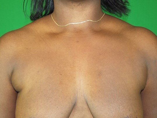Periareolar Lift and Implants Before