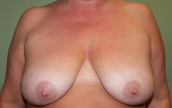 Modest Breast Reduction Before