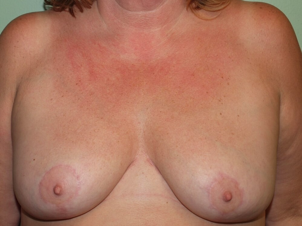 Modest Breast Reduction After