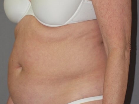Smoothing Abdominal Contour Before