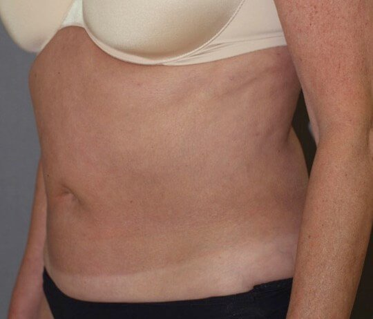 Smoothing Abdominal Contour After