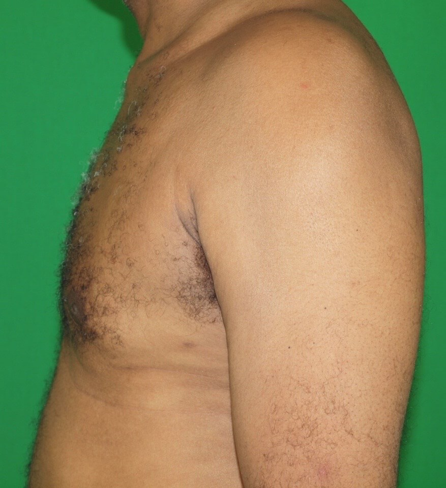 Chest Sculpturing After