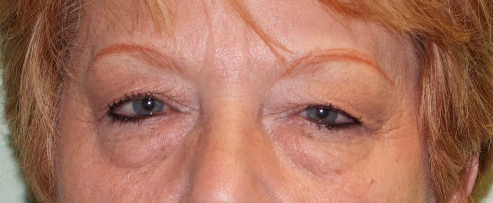 Blepharoplasty for Puffy Eyes Before