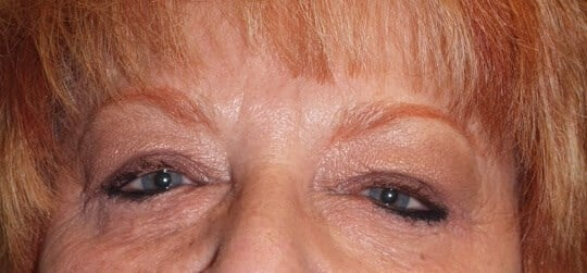 Blepharoplasty for Puffy Eyes After