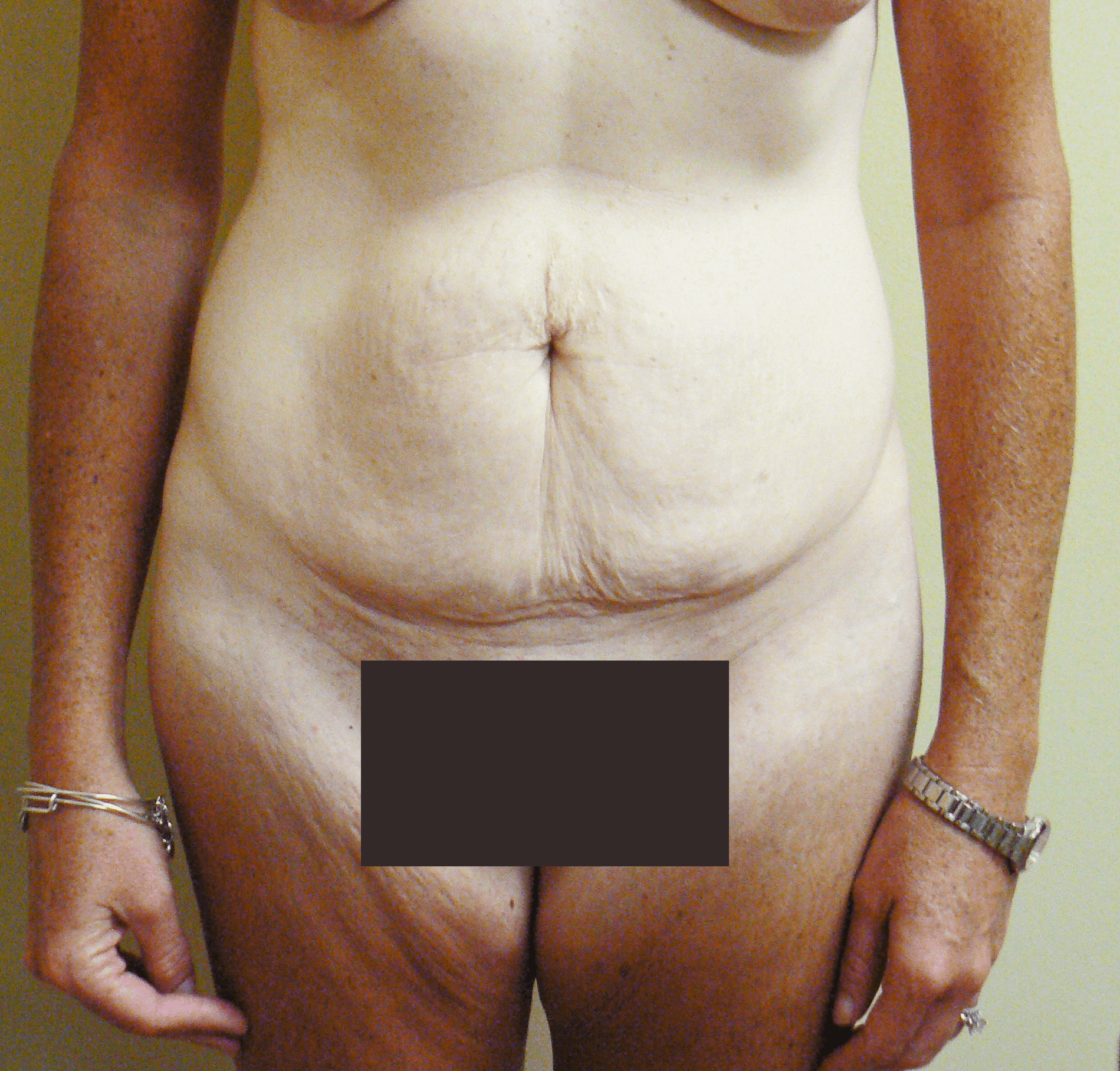 Modified Abdominoplasty Before