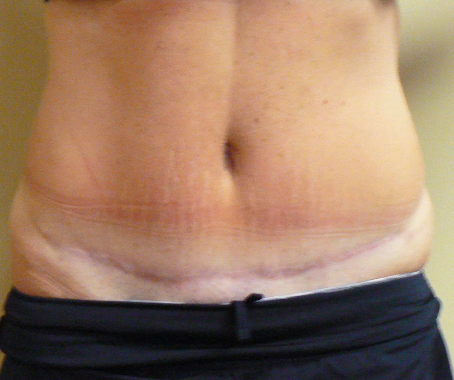 Modified Abdominoplasty After