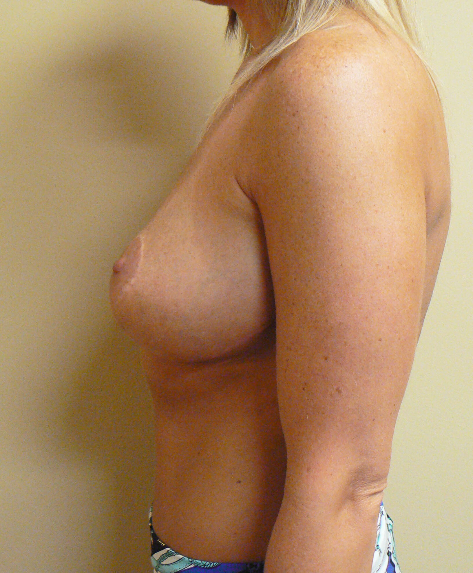 Breast lift / tummy tuck After