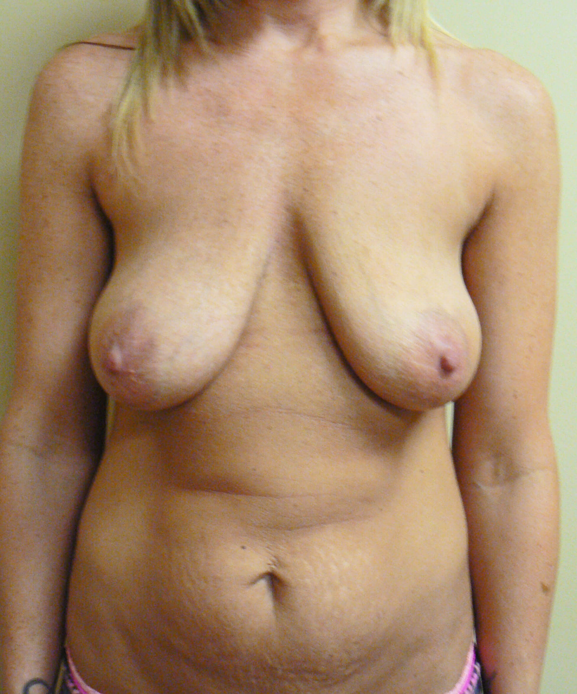 Breast lift / tummy tuck Before