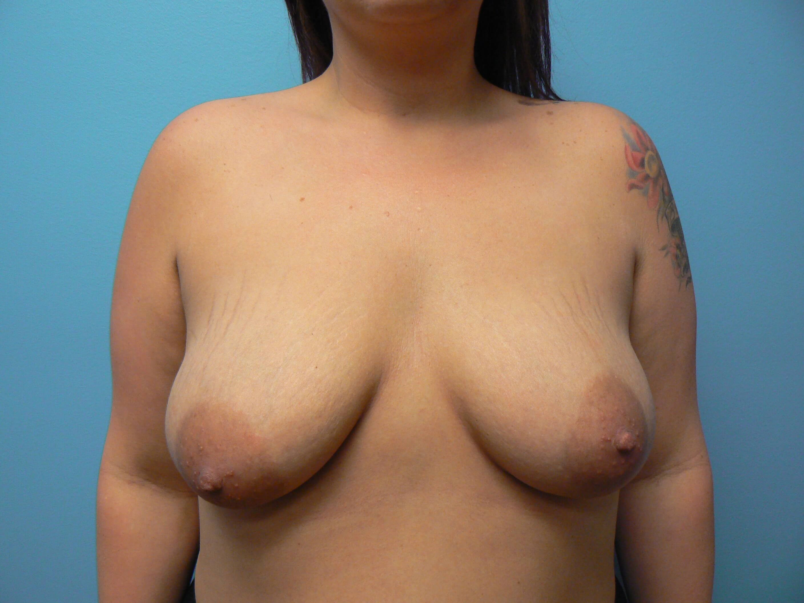 Breast Augmentation / Lift Before