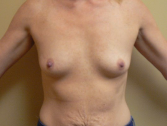 Subfascial Breast Augmentation Before