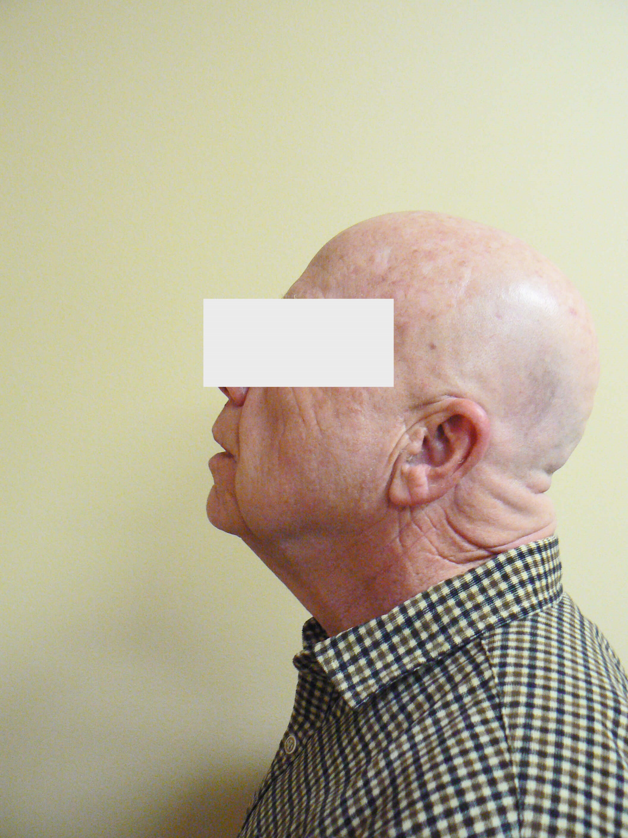 Male Neck lift & Fat transfer Before