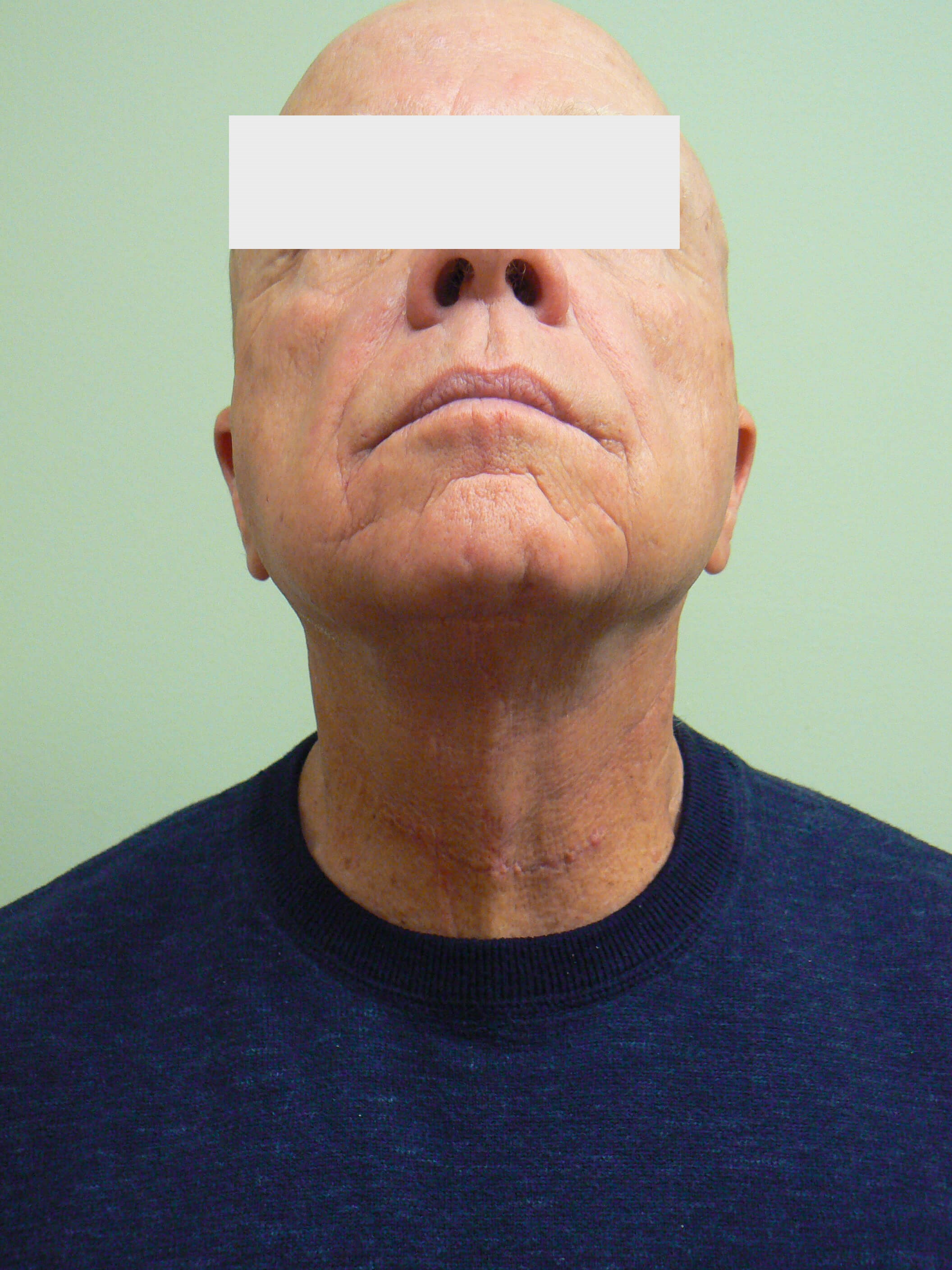 Neck Rejuvenation After