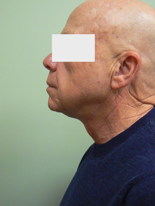 Male Neck lift & Fat transfer After