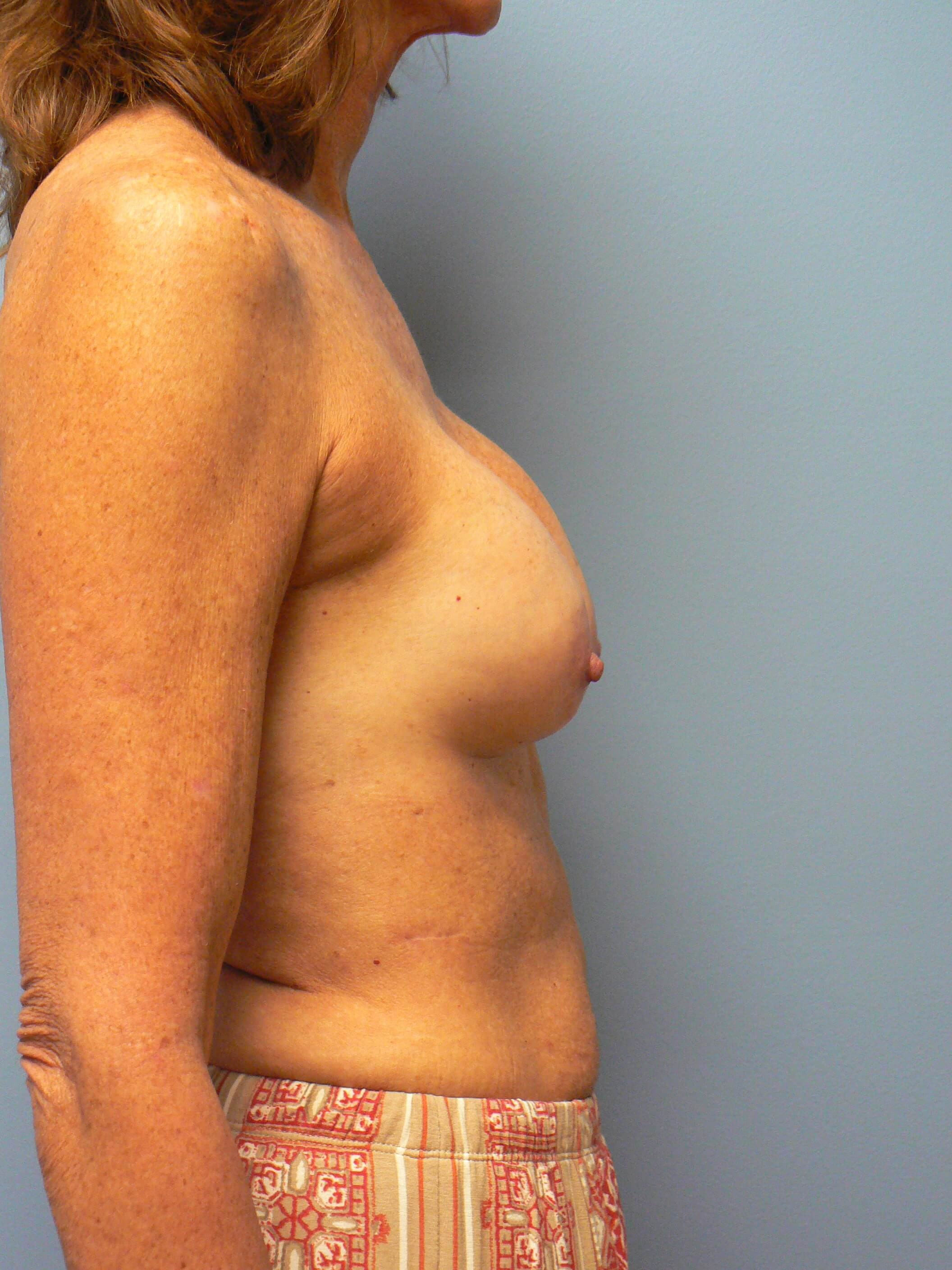 Secondary Breast Surgery Before