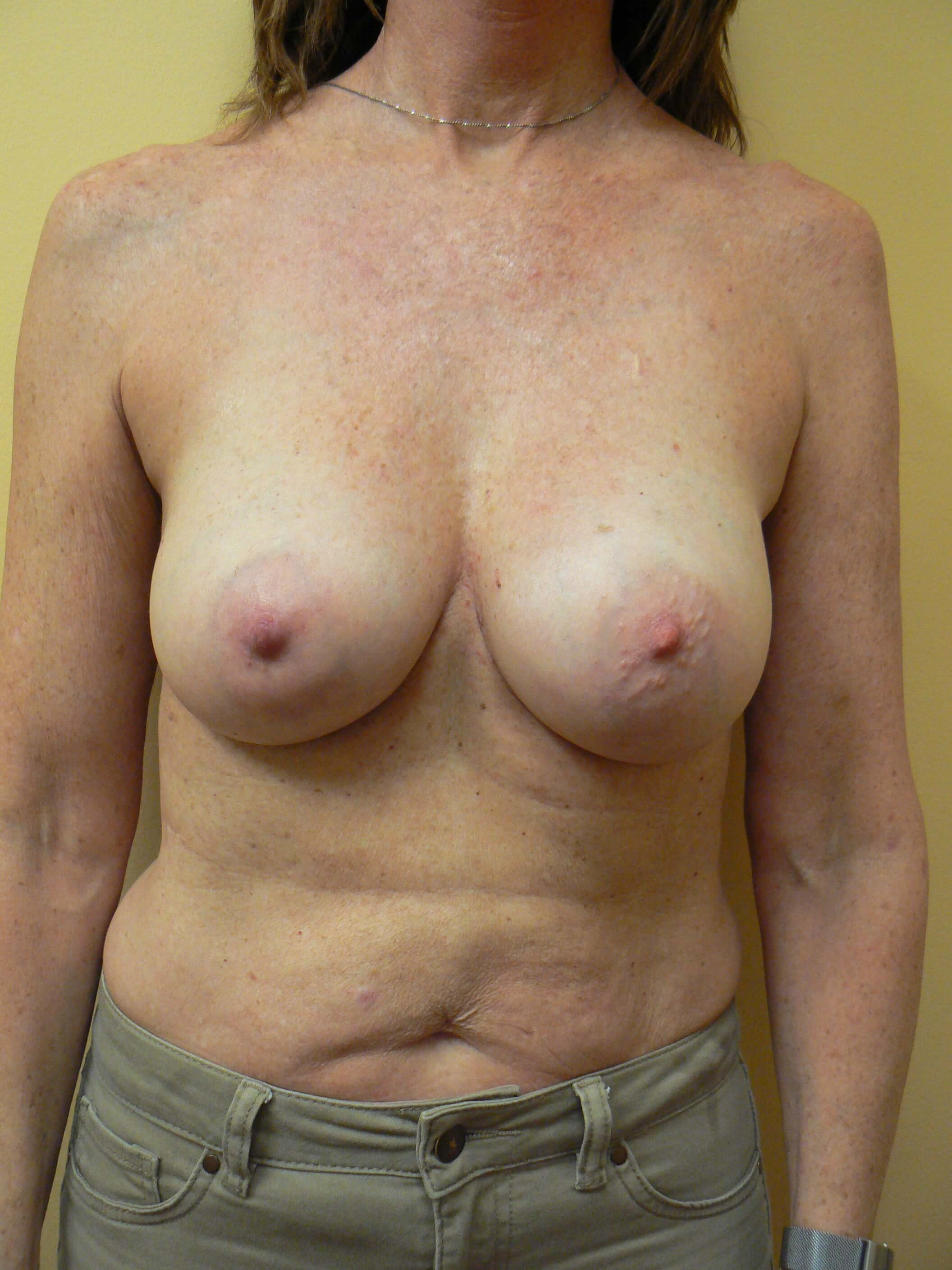 Revision Breast Surgery After