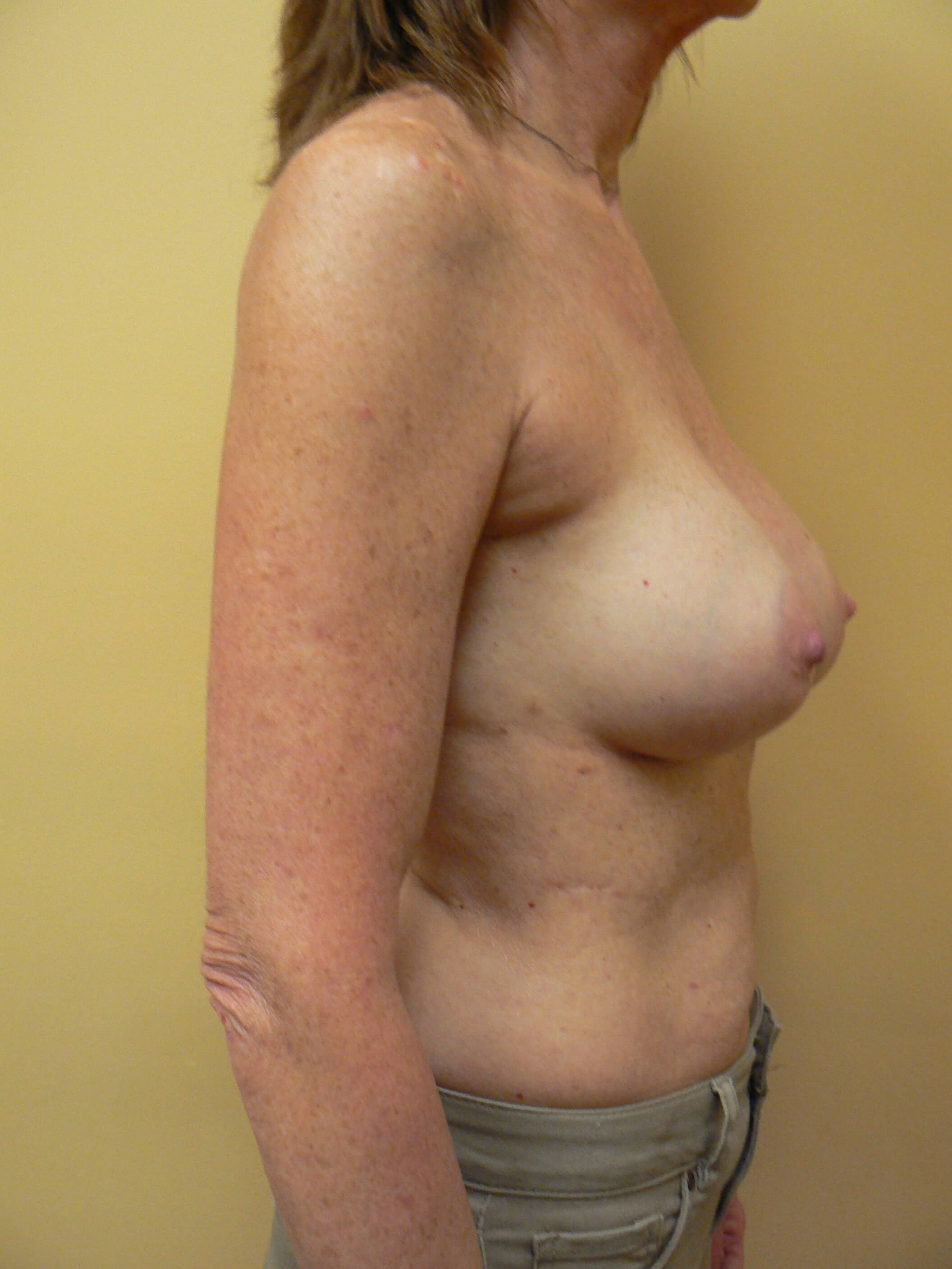 Secondary Breast Surgery After