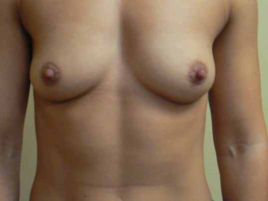 Submuscular Breast Augment Before
