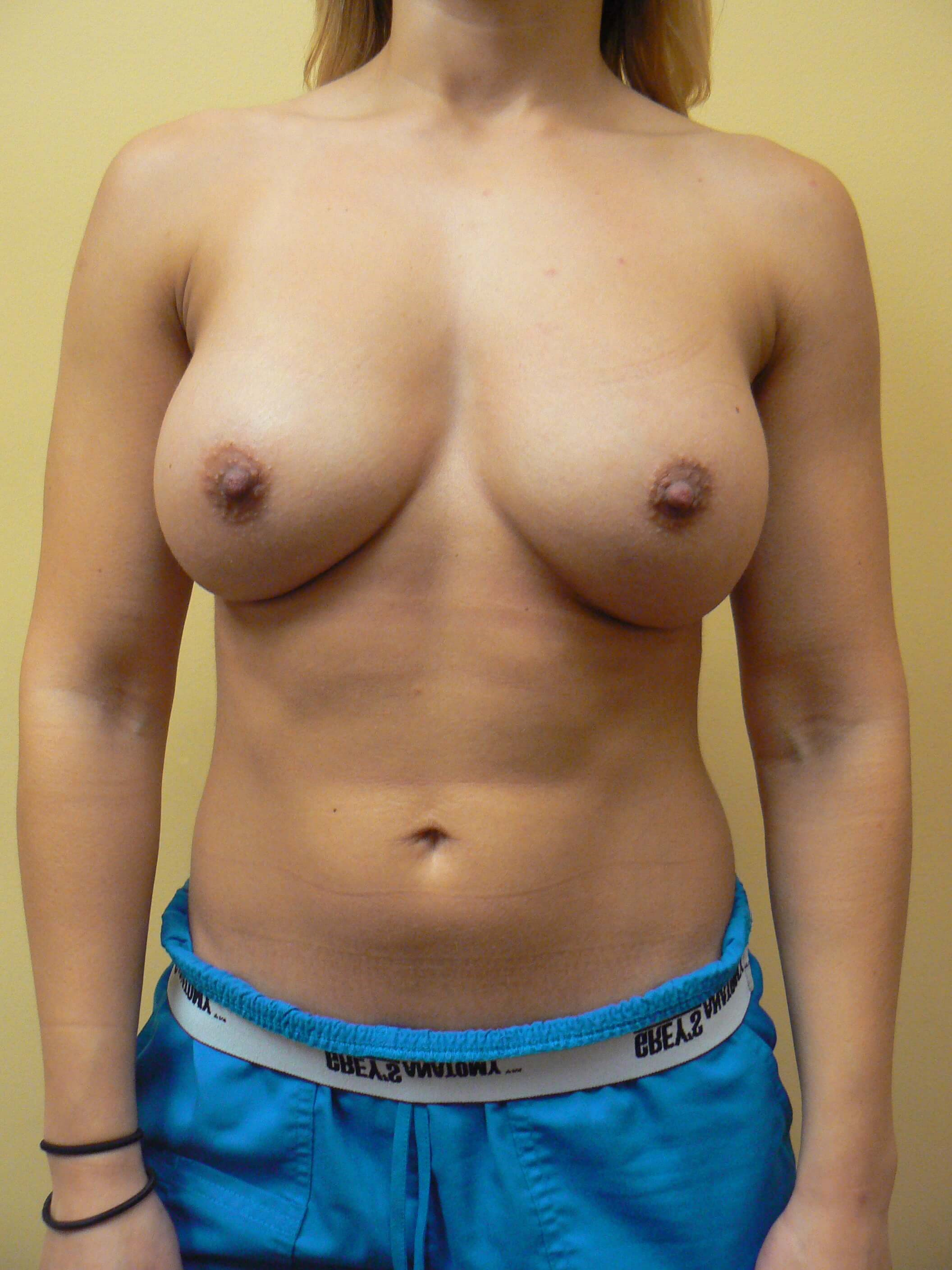 Submuscular Breast Augment After