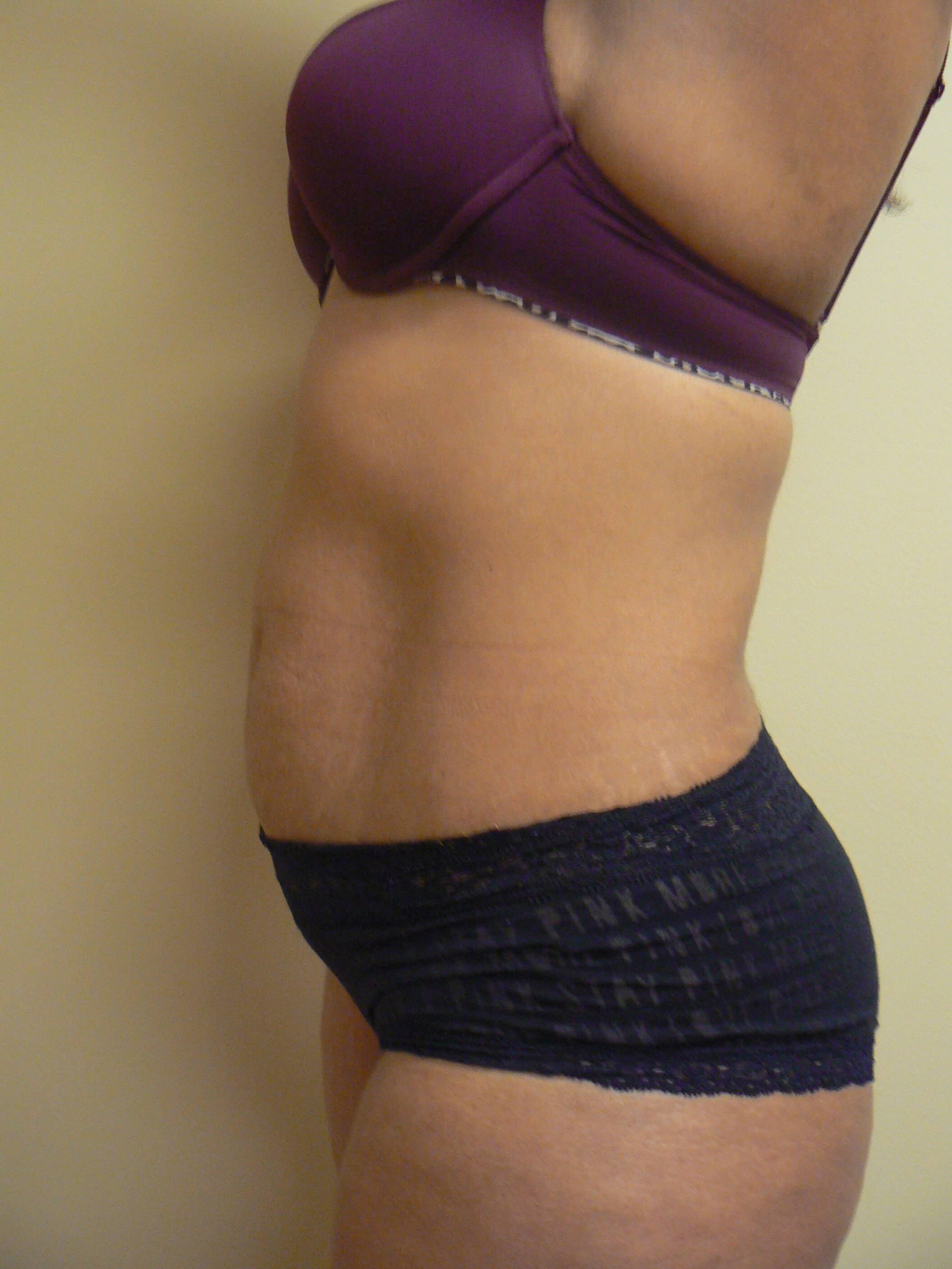 AbdominoplastyT Before