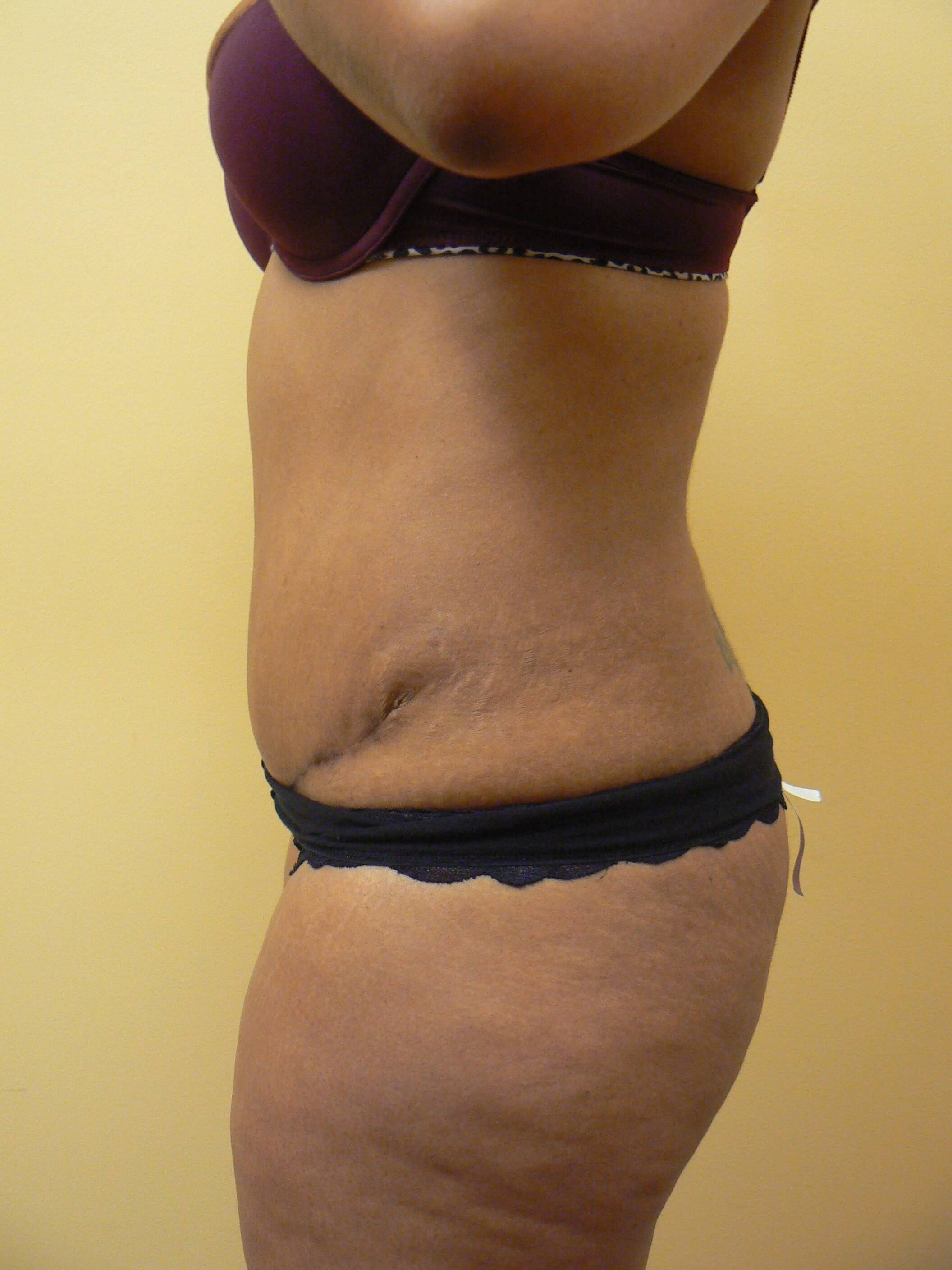 AbdominoplastyT After