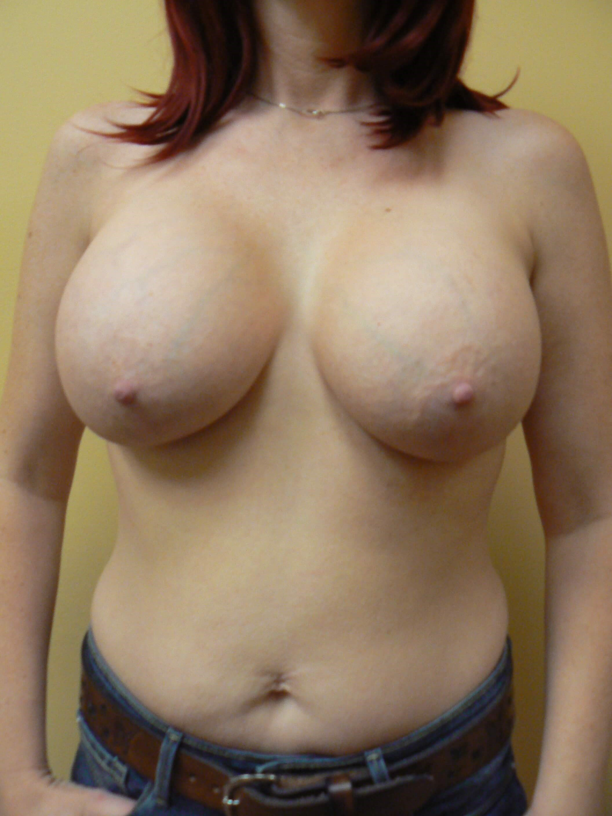 Subfascial Breast Augmentation After