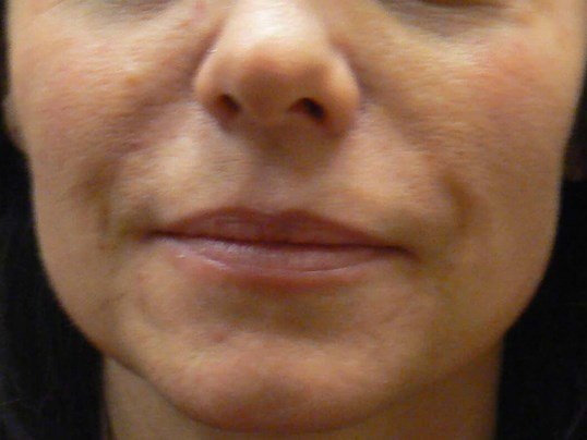 Correcting Nasiolabial Folds After