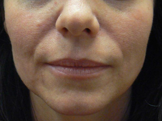 Correcting Nasiolabial Folds Before