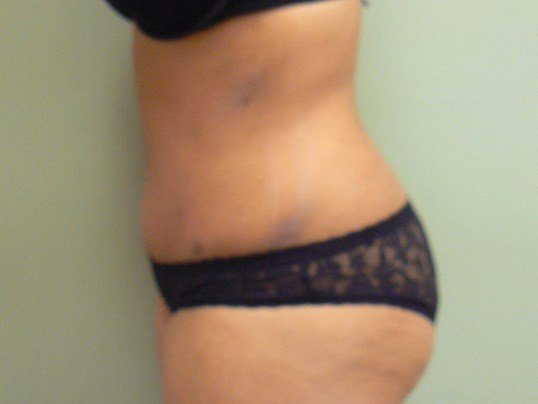 Tummy Tuck Profile view After