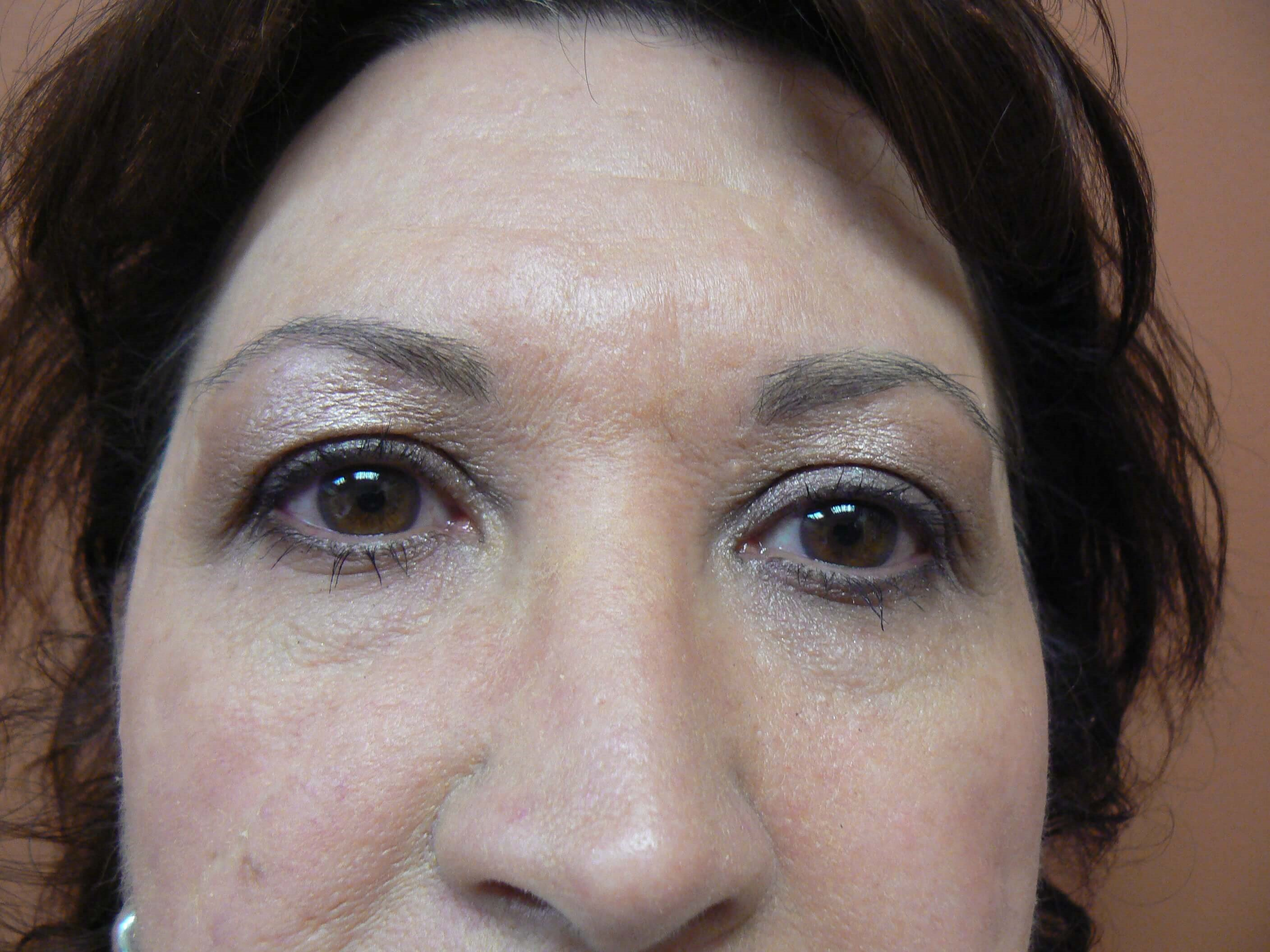 Front view upper eyelids Before