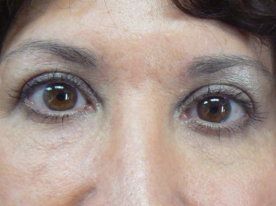 Front view upper eyelids After