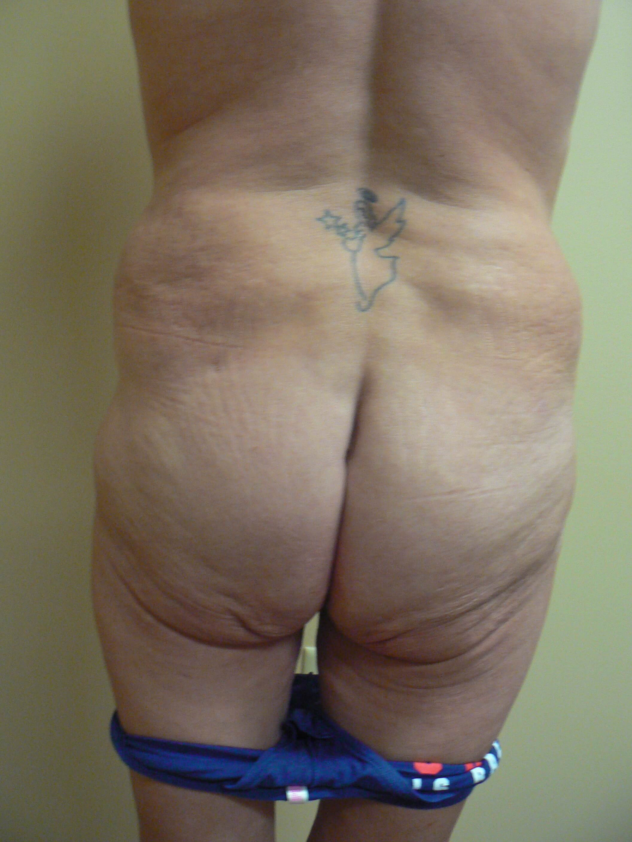 Buttocks lift and fat grafting Before