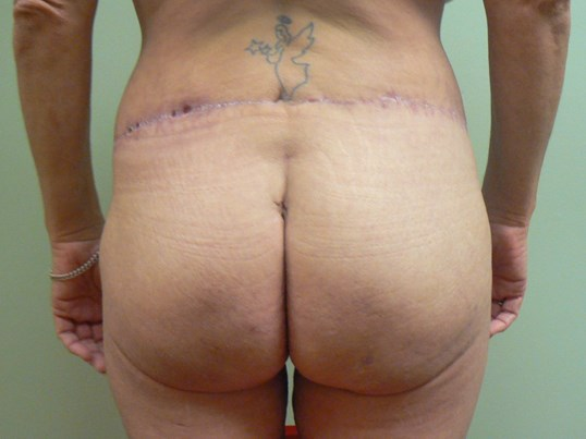 Buttocks lift and fat grafting After