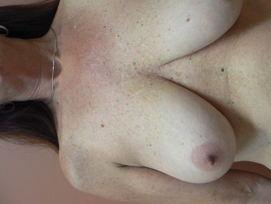 Breast lift with autoaugment Before