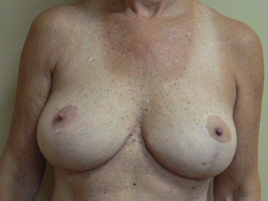 Breast lift with autoaugment After