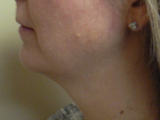 Submental (Neck)  Liposuction Before