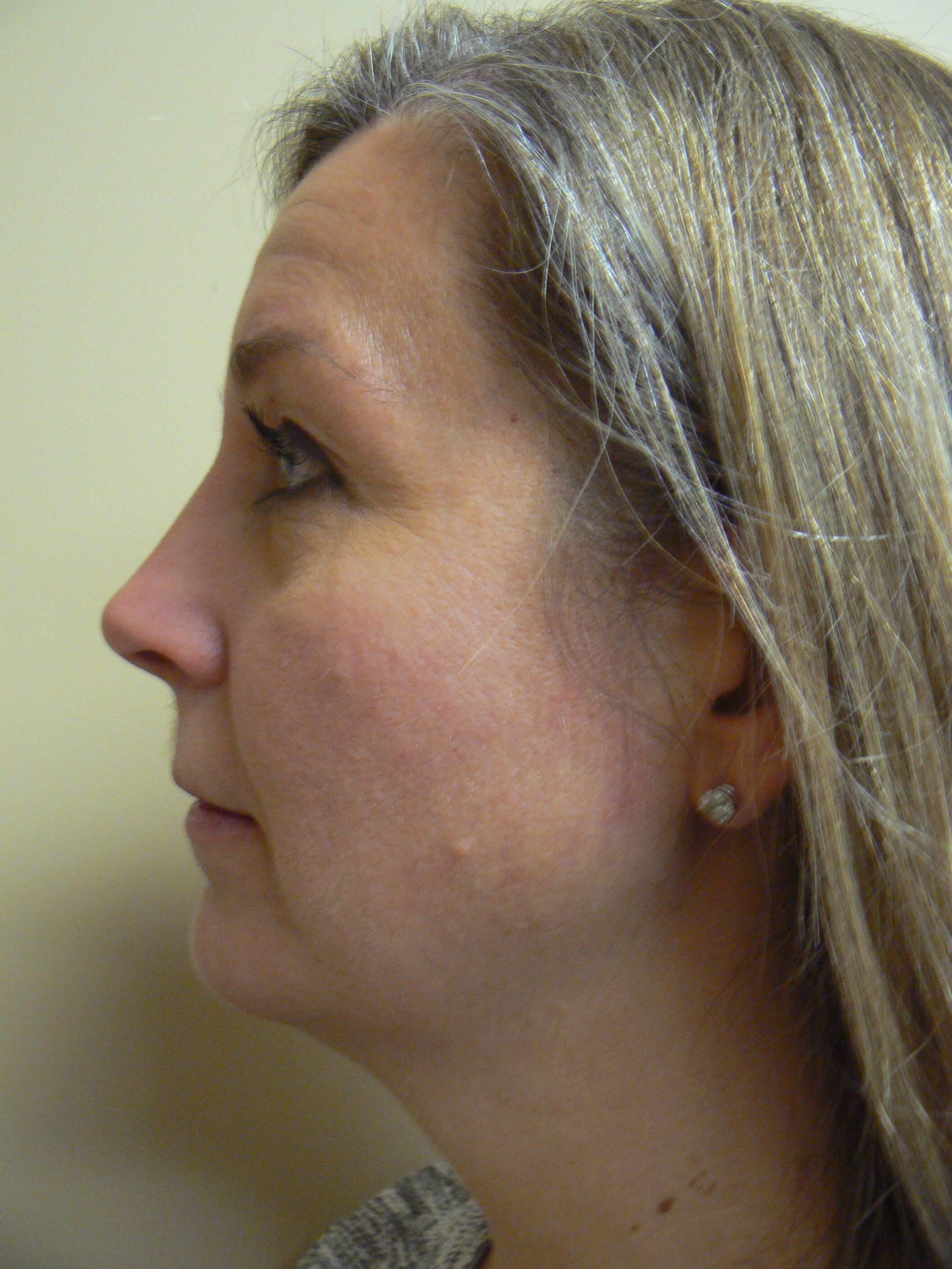 Liposuction of the neck Before