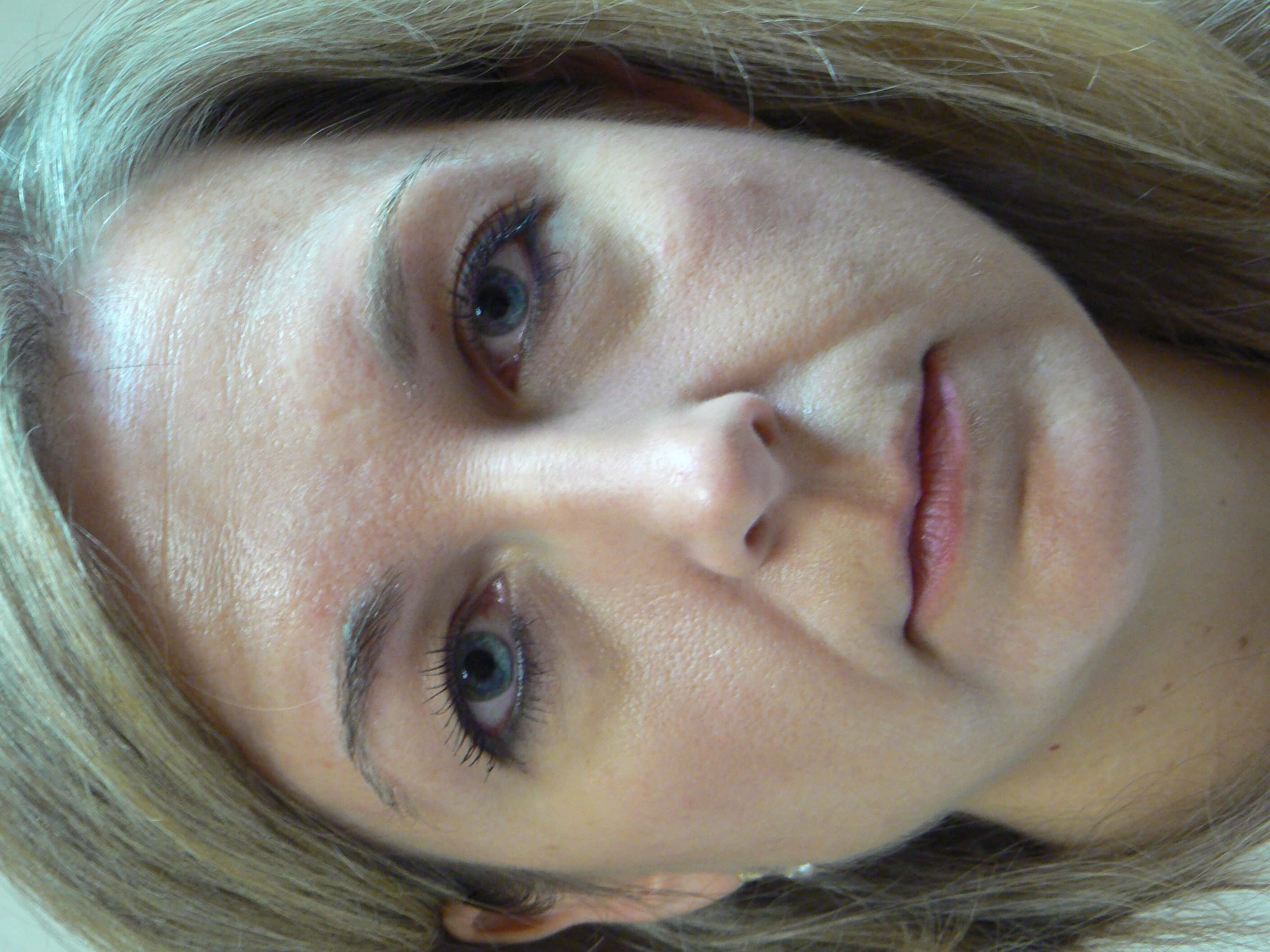 Upper eyelid Blepharoplasty Before