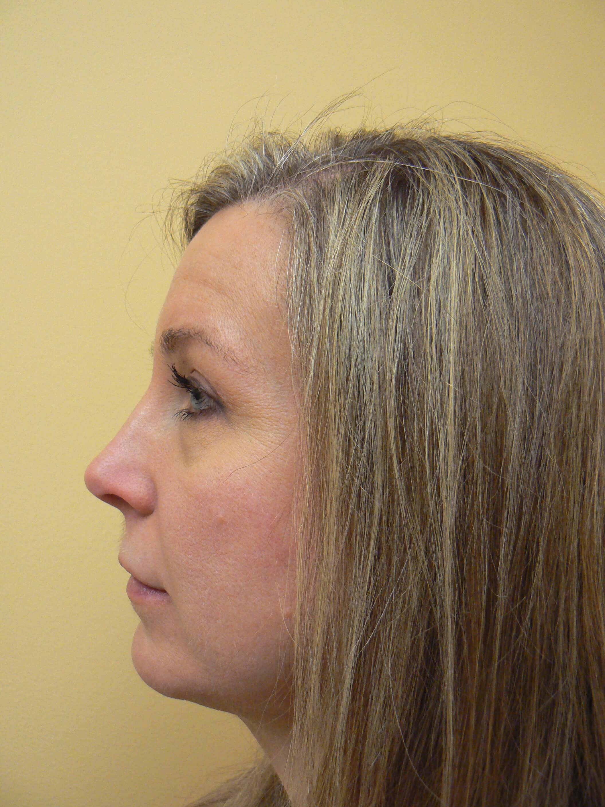 Liposuction of the neck After