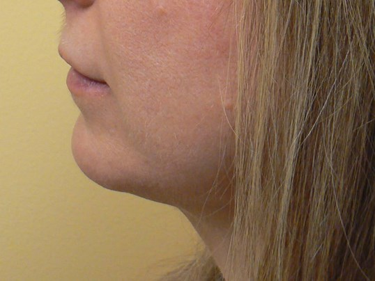 Submental (Neck)  Liposuction After