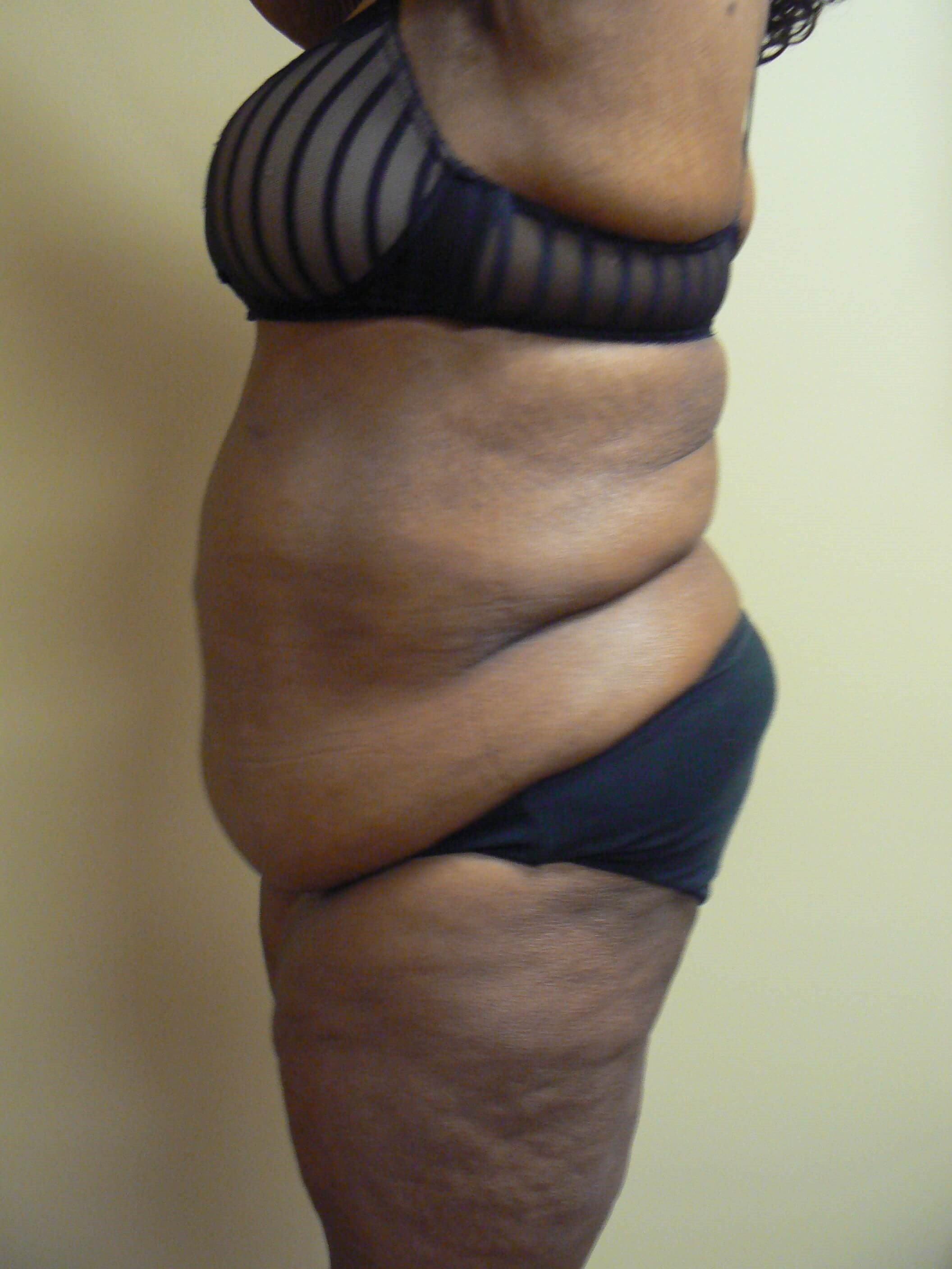 Weight loss patient for body contouring