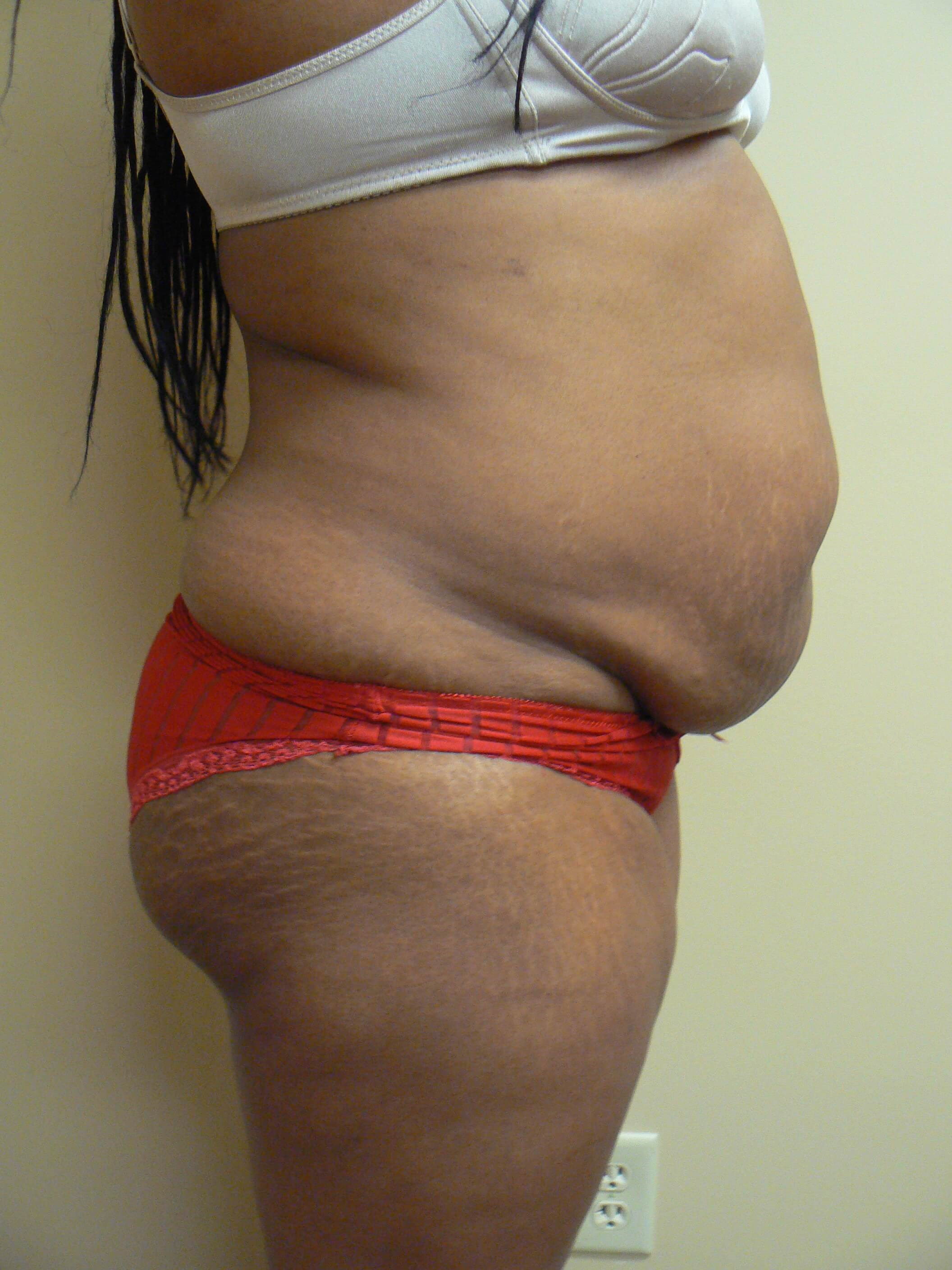 Abdominoplasty Before