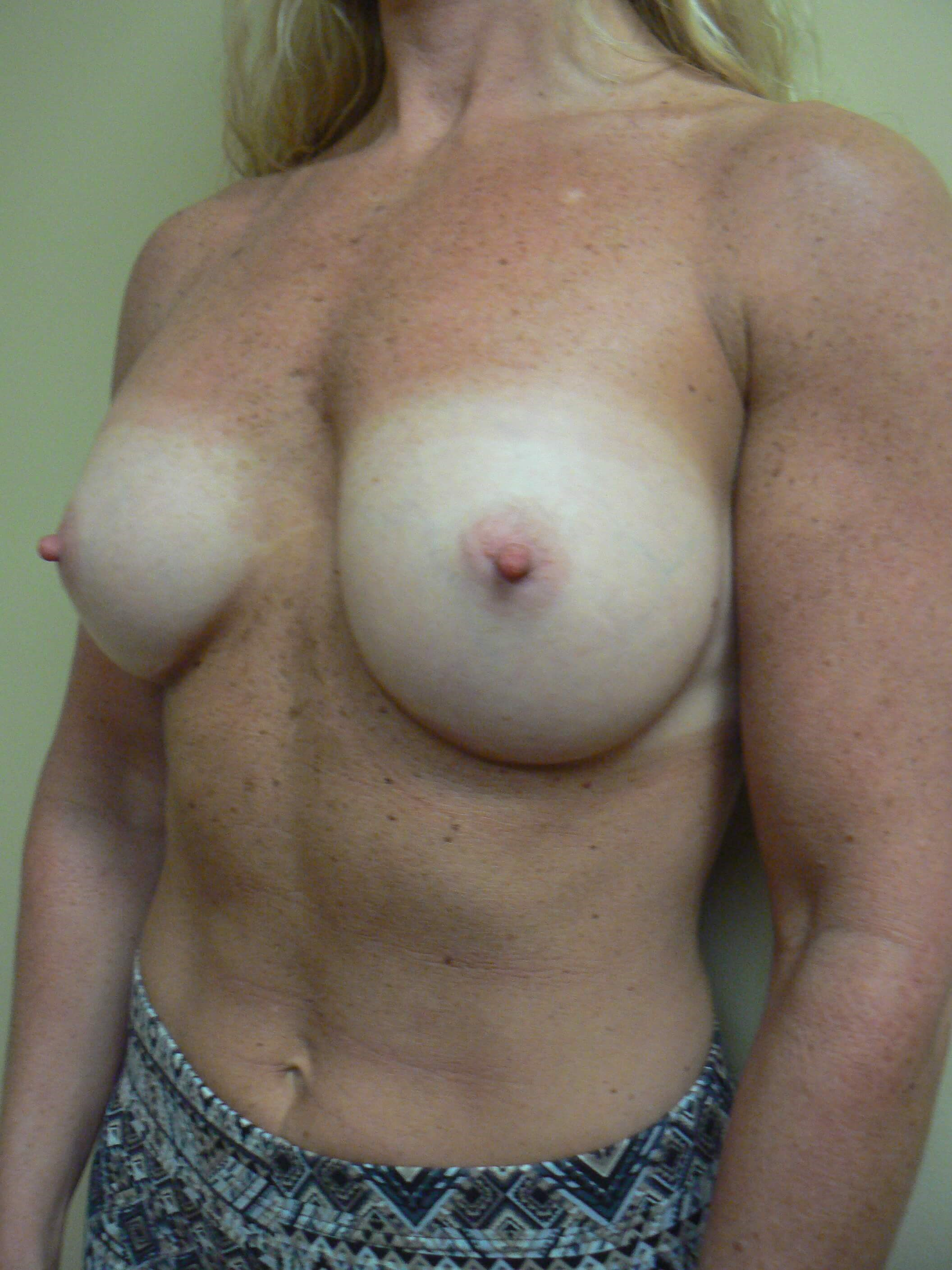 Revision breast augmentation Before