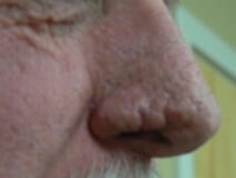 Rhinophyma of the nose Before