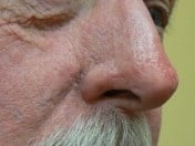 Rhinophyma of the nose After