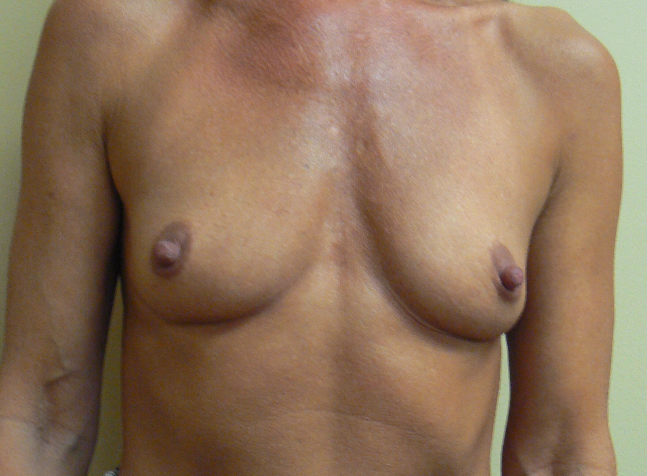 Shaped Gel breast augmentation Before