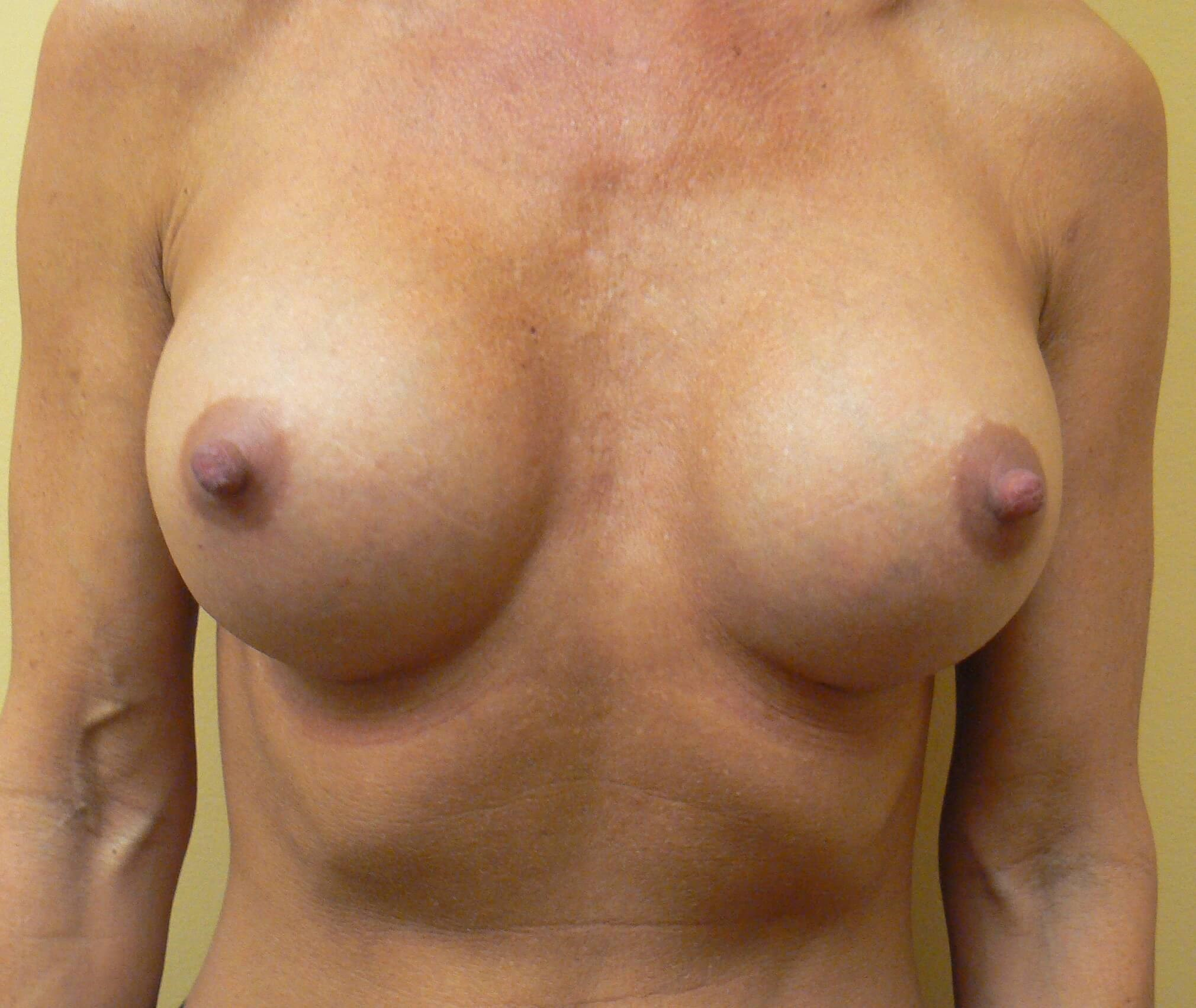 Shaped Gel breast augmentation After