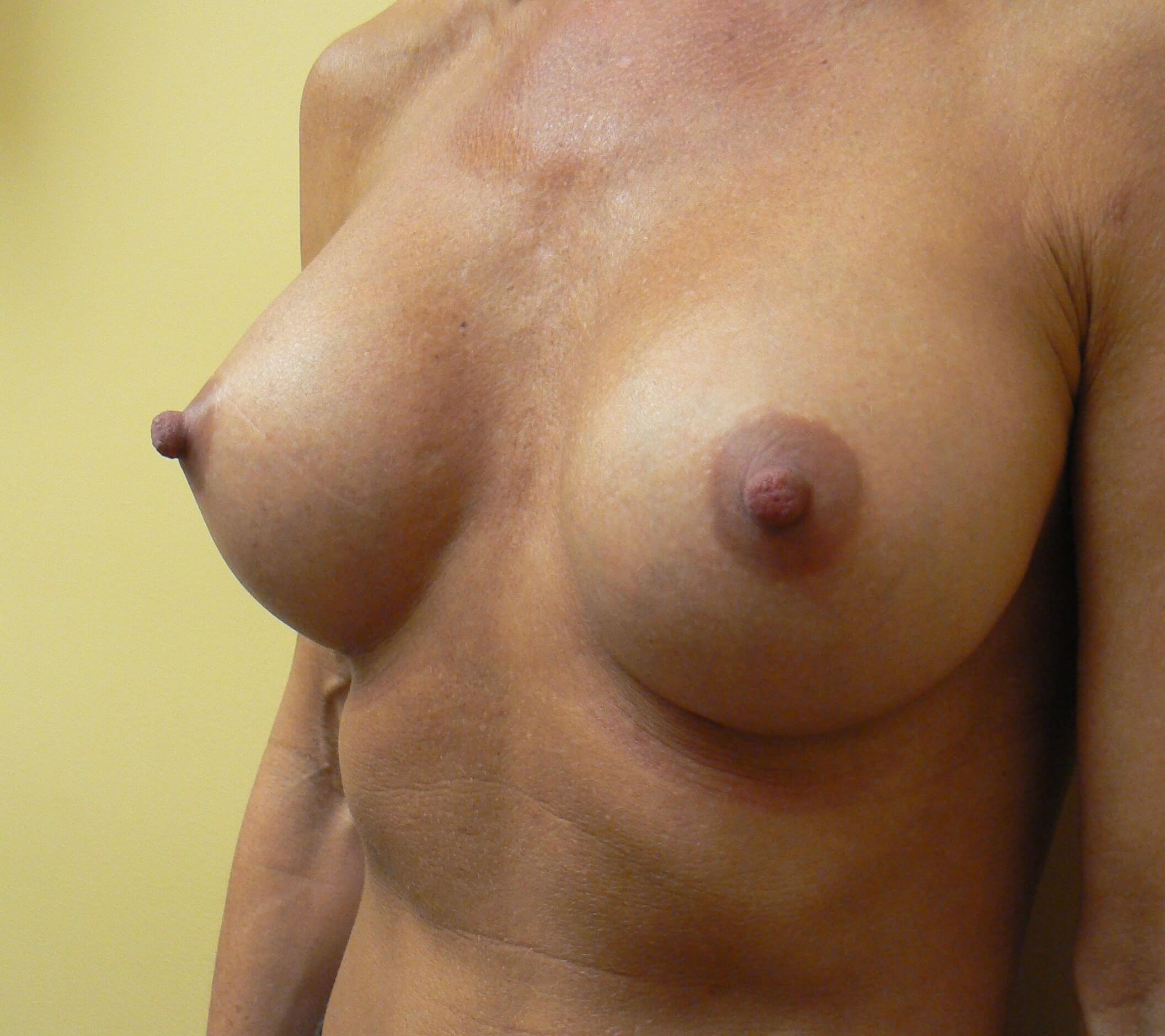 Shaped gel breast implants After